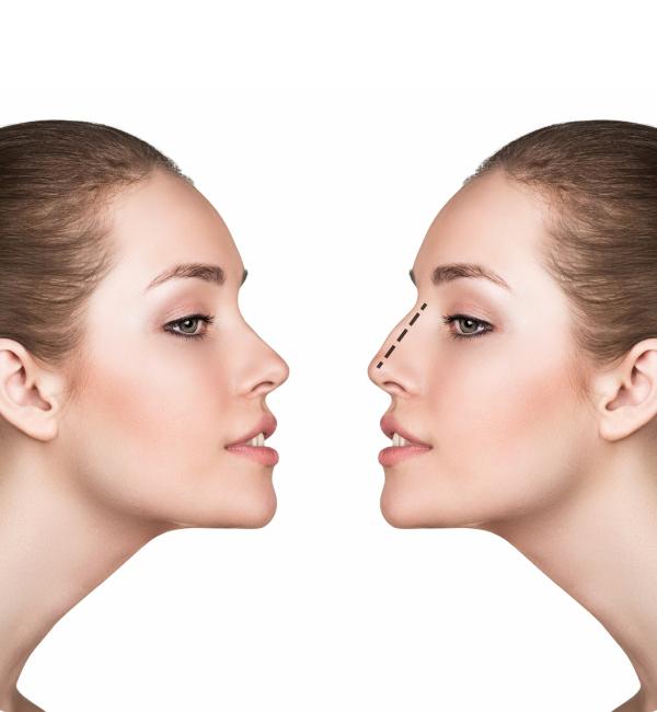 Deviasyon (Nasal Septum Deviasyonu)